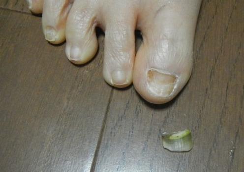 右足の親指の爪